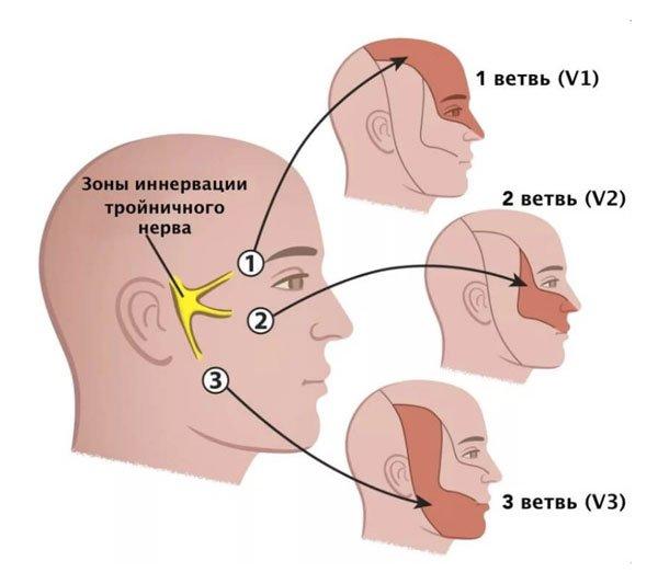 Невралгия тройничного нерва лечение Марьино