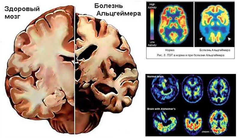 МРТ при болезни Альцгеймера
