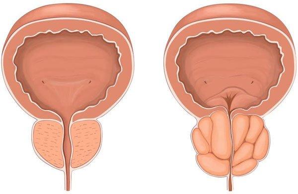 Аденома предстательной железы диагностика и лечение