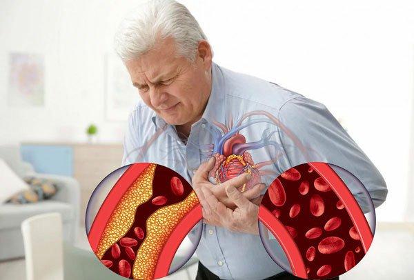 Ишемическая болезнь сердца диагностика, лечение Марьино